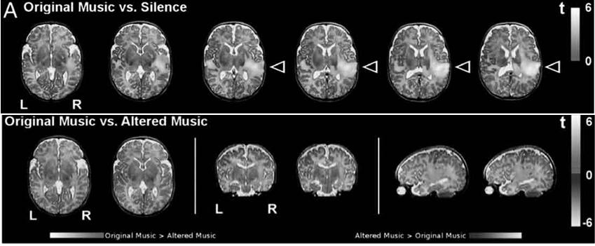 Figura 6.1 e 6.2 - Risultati della risonanza magnetica funzionale (FMRI) che ha esaminato l'attività del cervello in neonati di 24-48 ore di vita. I risultati dello studio mostrano che già nelle prime ore di vita si attivano nell'emisfero destro gli stessi sistemi neurali presenti negli adulti esposti da tempo alla musica. Quando invece i bambini ascoltavano gli stessi estratti di musica resi alterati nella struttura si aveva la coattivazione anche dell'emisfero sinistro e in particolar modo della corteccia frontale inferiore.