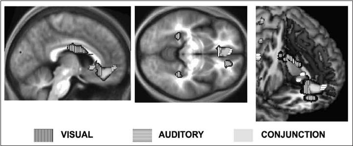 """Figura 6.3 - grazie ai risultati del suo studio, zeki ha scoperto che quando si ascolta un brano o si osserva un quadro, definiti come """"belli"""", si attiva maggiormente un'area della corteccia orbito-frontale mediale, dimostrando che la stessa area del cervello si attiva sia per la bellezza visiva sia per quella uditiva."""